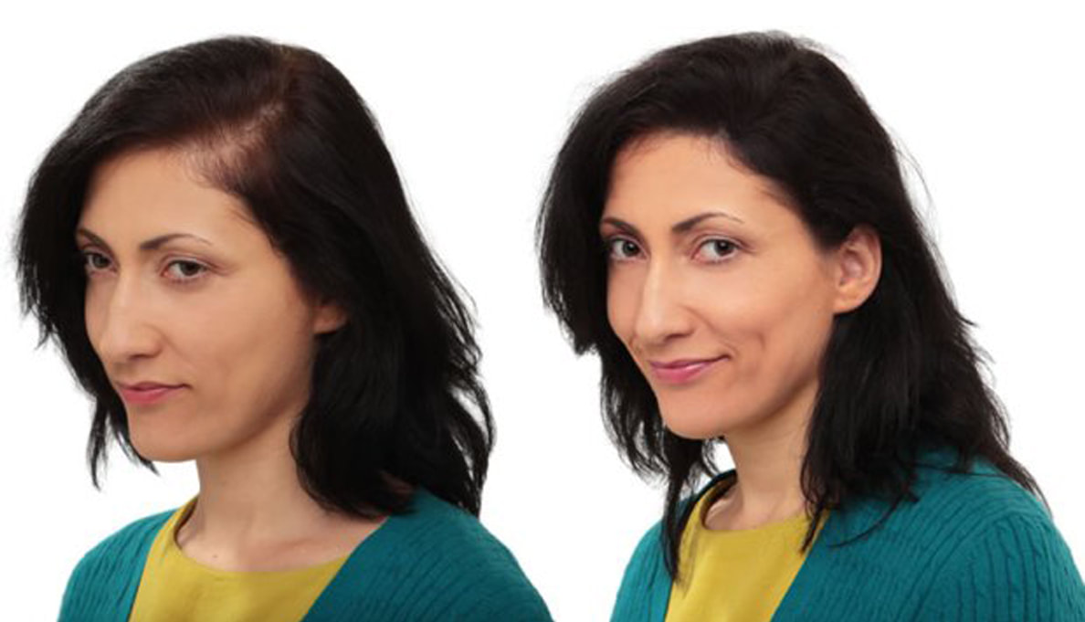 Low Cost Non Surgical Hair Replacement Or High Cost Hair Transplant